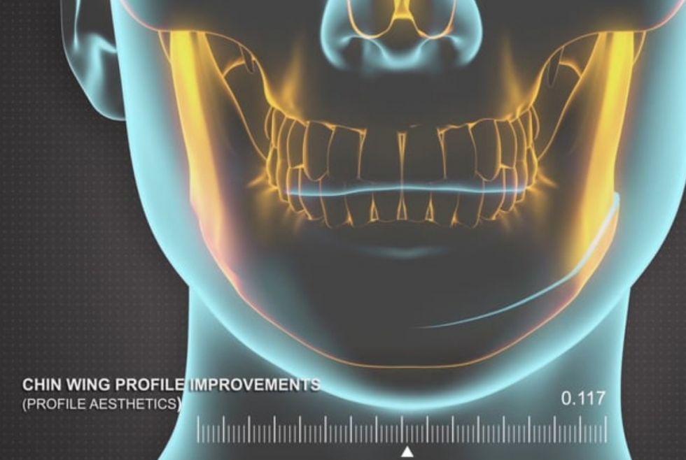 الدكتور - دانييل بروسكو - عيادة خاصة لجراحة الفك والوجه