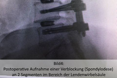 Dr.med. - Farman Hedayat - Ortho-Klinik Dortmund Hospital – Center for Spinal Surgery and Pain Therapy