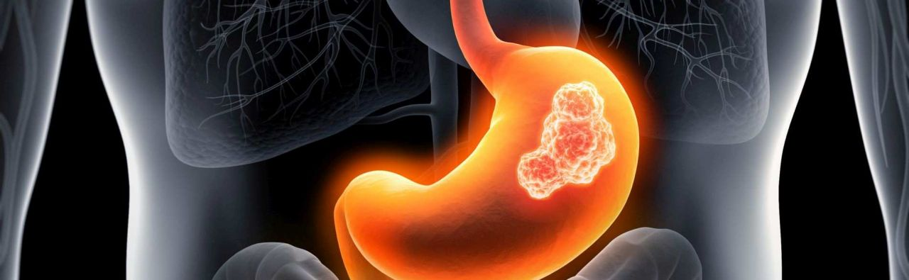 Gastric cancer - Medical specialists