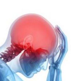 الورم الوعائي في الدماغ ـ التشوه الشرياني الوريدي الدماغي، التشوه الشرياني في الدماغ