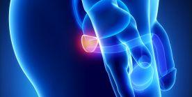 الاستئصال الجذري للبروستاتا في حالات سرطان البروستاتا