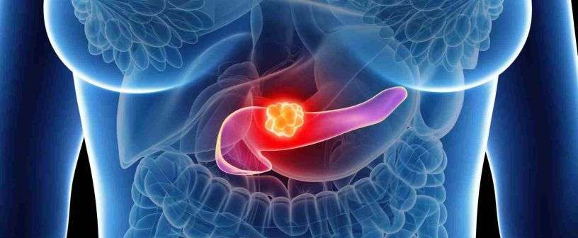Pancreatic cancer - Medical specialists