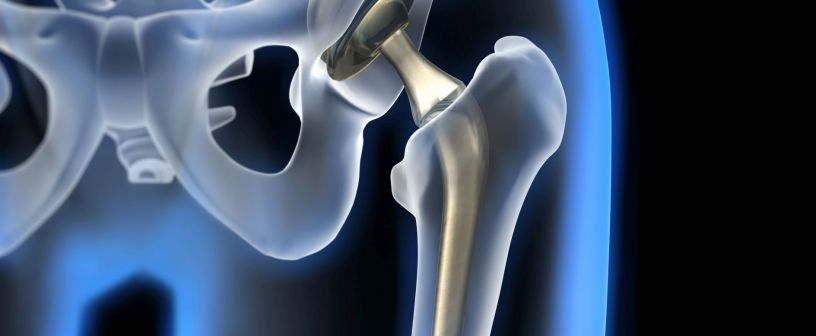Hip endoprosthetics - Medical specialists