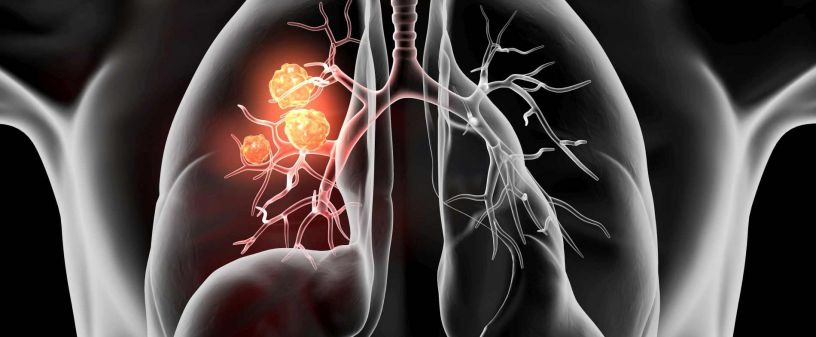 Lung Cancer - Medical specialists